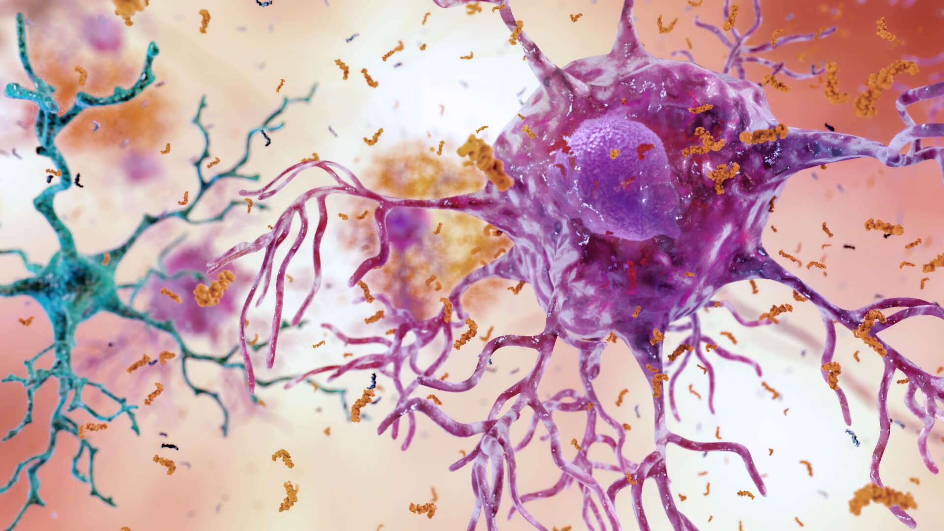 Brain Inflammation from Alzheimer's Disease